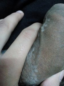 Illustration of Treatment For Pain And White Patches Appear On The Penis?