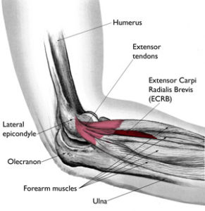 Illustration of How To Deal With Pain In The Elbow Due To Bone Shift?