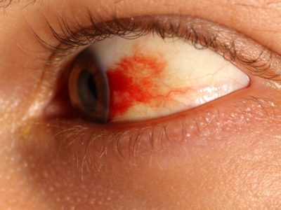 Illustration of Right Eye Blotches Out Like Blood?