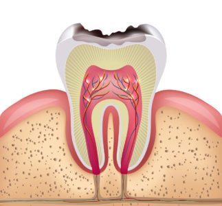 Illustration of Toothache That Suddenly Arises Because Of Cavities?