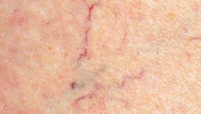 Illustration of The Veins Are Stiff And Reddish Veins Appear?