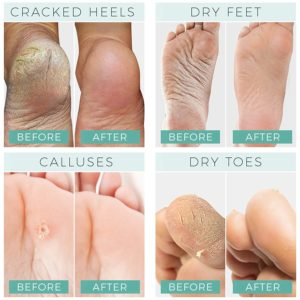 Illustration of Dry Skin Around The Toes And Cracked Heels?
