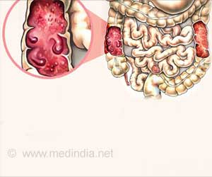 Illustration of Stomach Pain And Hair Loss During TB Gland Treatment?