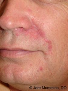 Illustration of Red Rashes Around The Nose Area?