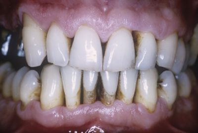 Illustration of Treatment Of Patched Teeth Is Vulnerable To Sensitive And Bleeding Gums?