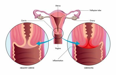 Illustration of Pain In The Vagina In Pregnancy Entering The Age Of 9 Months?