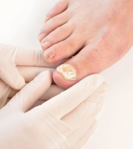 Illustration of Take Medication For Nail Fungus While Pregnant?