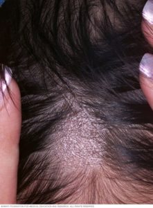 Illustration of Treatment Of Ringworm On The Scalp?
