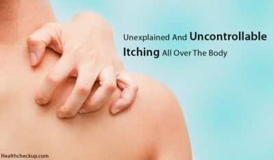 Illustration of Treatment Of Itching All Over The Body?