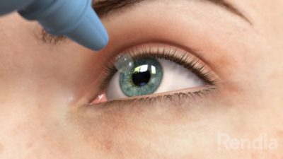 Illustration of Can I Take Eye Medication Before Driving?