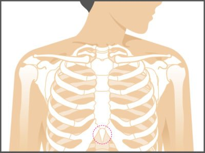 Illustration of Lump In The Middle Of The Chest?