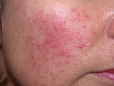 Illustration of Causes Red Sores On The Face?