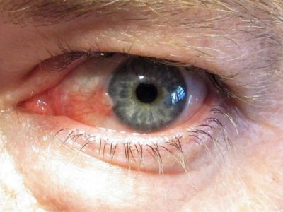 Illustration of White Color Appears On The Cornea Of the Eye After Being Exposed To Splinters?