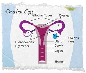 Illustration of What Is The Ovarian Mass?