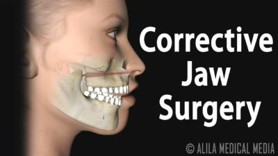 Illustration of After A Broken Jaw Surgery Can I Pull My Teeth?