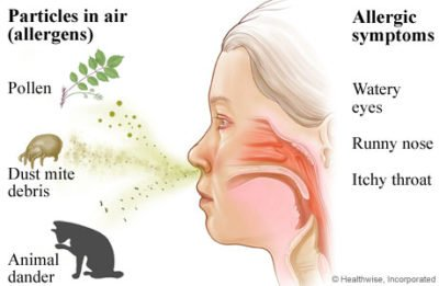 Illustration of Frequent Sneezing, Accompanied By Watery Eyes, Itchy And Runny Nose?