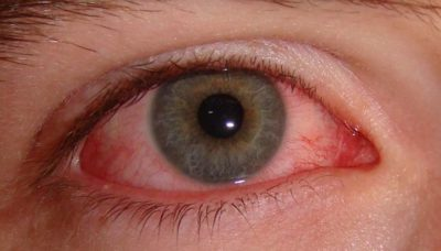 Illustration of Red Eyes, Swelling And Discharge Can Be Contagious?