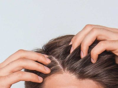 Illustration of Side Effects Of Soap So Shampoo On The Scalp?