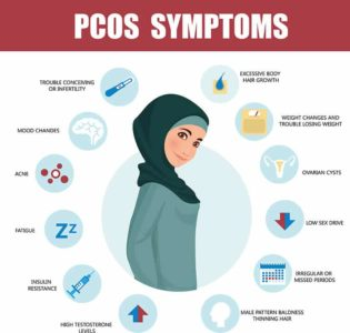 Illustration of Do PCOS Sufferers Have To Stop Working?