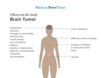 Illustration of The Characteristics Of Brain Cancer Symptoms?