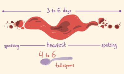 Illustration of Blood Loss Outside The Menstrual Cycle?