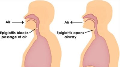 Illustration of The Hiccups Don't Stop?