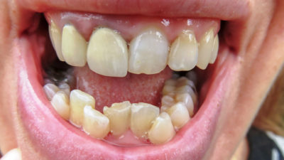 Illustration of How To Deal With Front Teeth That Come Off To The Roots?