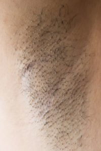 Illustration of A Lump In The Armpit That Feels Piercing Pain?