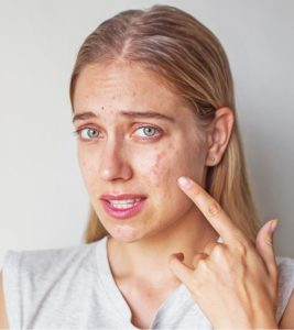 Illustration of Solution To Treat Acne And Get Rid Of Acne Scars?