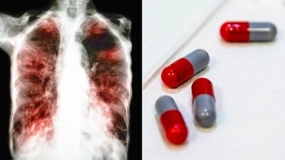 Illustration of Treatment For Tuberculosis?