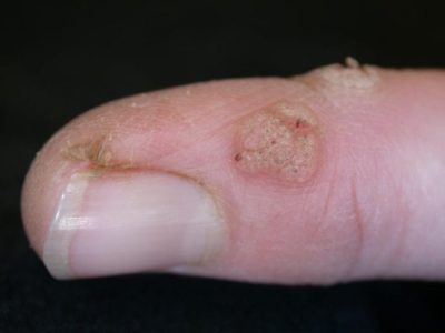 Illustration of The Cause Of Warts On The Fingers Appears Again After Surgery?