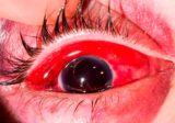 Treatment Of Eyes That Have Bleeding Wounds?