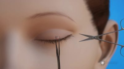 Illustration of How To Get Rid Of Warts On The Eyelids?