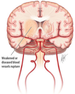 Illustration of Brain Hemorrhage Occurs Due To Rupture Of Blood Vessels In The Brain?
