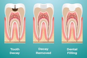 Illustration of Do Cavities Need To Be Removed?