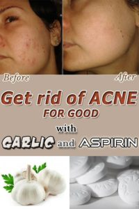 Illustration of Acne Sores Due To The Use Of Garlic.?