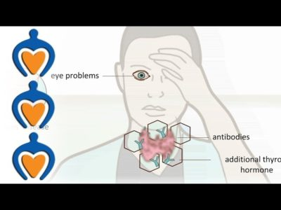 Illustration of Healing Of Thyroid Side Effects?