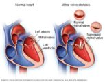 Blood Clots In Mitral Stenosis Patients?
