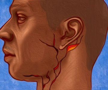 Illustration of Lump Behind The Ear And Under The Jaw.?