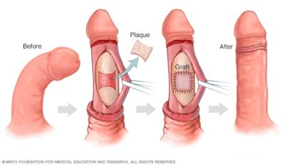 Illustration of Treatment For Curved Penis.?