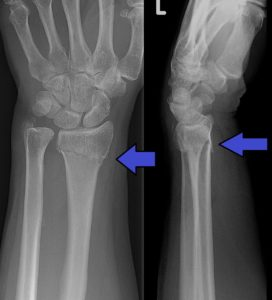 Illustration of Distal Radius Fractures With Displacement?