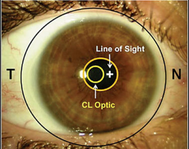 Illustration of The Use Of Contact Lenses Should Be Increased / Lowered The Minus?