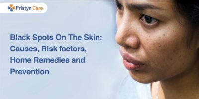 Illustration of Causes Of Black Skin In The Nose Area.?