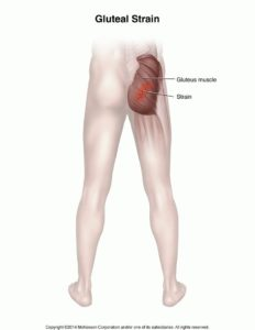 Illustration of Right Leg Cramps Or Muscles Pull From The Buttocks To The Ankles.?