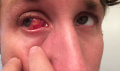 Illustration of The Eyes Are Always Red After Pterygium Surgery?