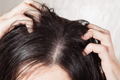 Illustration of Hair Is Easily Oily?