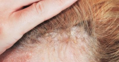 Illustration of Solution For Plaque Hair.?