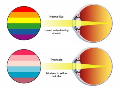 Illustration of The Problem Of People Suffering From Color Blindness?