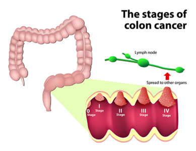 Illustration of When Can The Patient Be Diagnosed With Ca Colon?