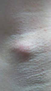 Illustration of A Small Bump On The Armpit Hurts.?